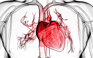 Как уберечься от инфаркта